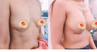 เสริมหน้าอกทรงหยดน้ำ 300 ซีซี หลังผ่าตัด 2 เดือน